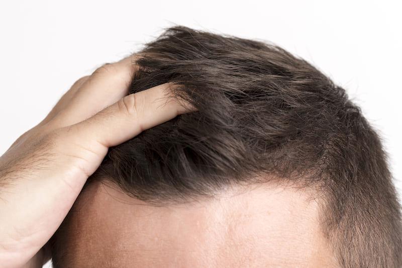 El confinamiento puede hacer que pierdas el pelo